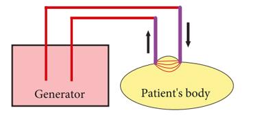 شکل 11: نحوه ورود و خروج جریان در حالت بایپولار