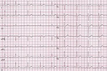 یک نمونه سیگنال ECG طبیعی
