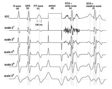 نتایج محاسبه DWT بر روی پنج مقیاس اول بر روی سیگنال های شبیه سازی شده مشابه با ECG