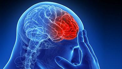 Photo of بهبود عوارض سکته مغزی به کمک تکنولوژی