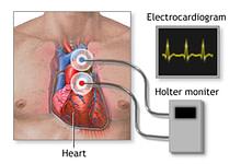 Photo of هولتر مانیتورچیست و کاربرد آن در پایش سلامت قلبی عروقی
