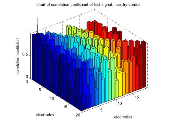 شکل1: ضرایب همبستگی بین 19 الکترود سیگنال اول گروه سالم-کنترل، ستون مشخص شده با فلش بزرگ ترین ضریب را دارد (Fp1-Fp2)