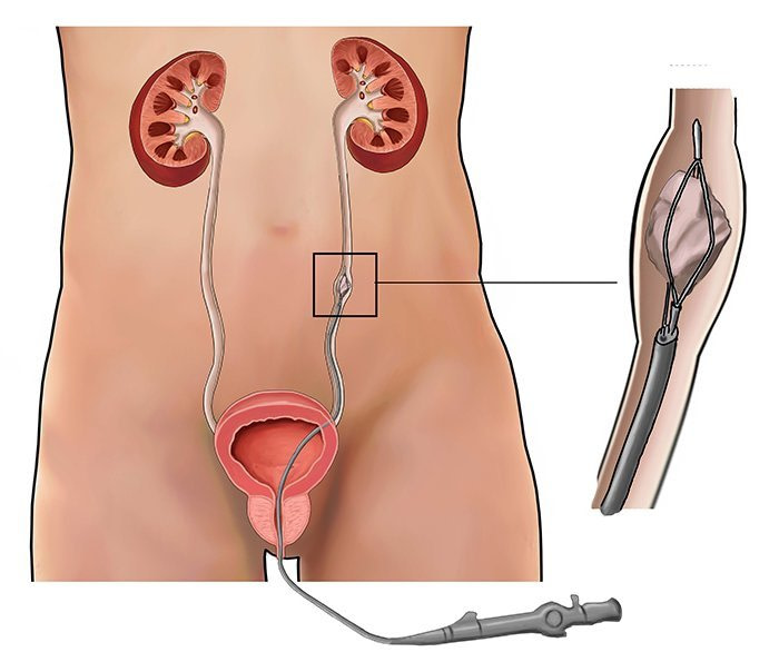 Ureteroscopy (Stone Removal)