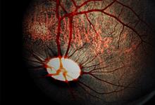 Photo of آنژیوگرافی فلورسین درمقایسه با ERG برای پیش بینی تشخیص بیماری در انسداد ورید شبکیه مرکزی