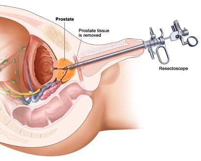 TURBT (TRANSURETHRAL RESECTION OF THE BLADDER TUMOR) SURGERY