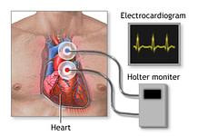 Photo of هولتر مانیتور، پایش سلامت قلبی عروقی